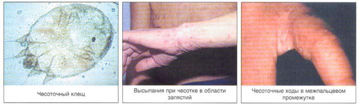 Анализ крови при чесотке