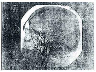 Артериовенозная мальформация спинного мозга