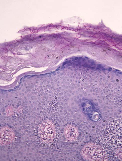 Рис. 3. Ветвящийся мицелий гриба в роговом слое эпидермиса (окраска ПАС-методом, х40).