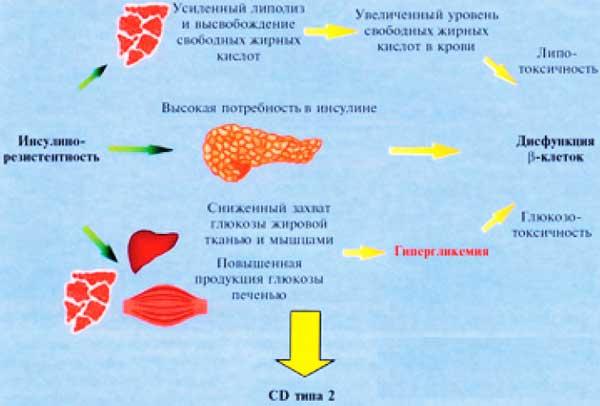 Глюкованс: преимущества лечения сахарного диабета 2 типа ...