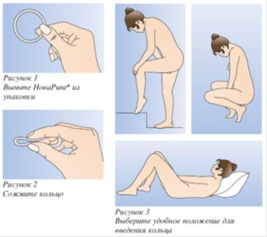 Как пользоваться кольцом для пениса фото 113-763
