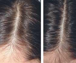 Алопеции волос препарат