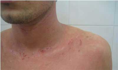 Лактофильтрум при дерматите на лице