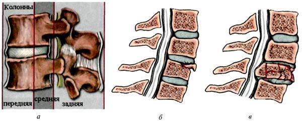 При травме позвоночника травма поясничного отдела занимает