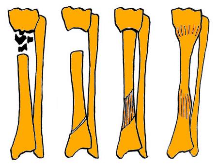 Мкб 10 хронический остеомиелит